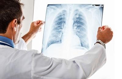 Опухоль грудной клетки