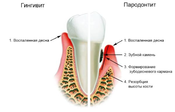 Воспаление дёсен у детей при прорезывании зубов